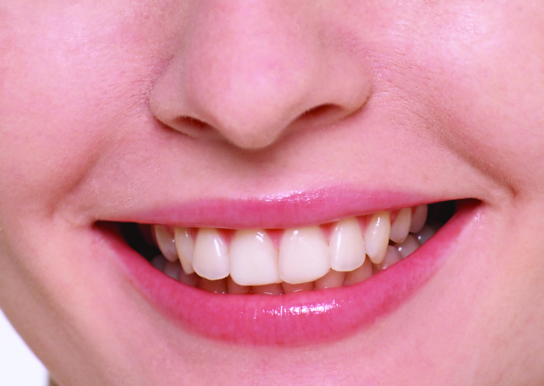 A cor dos dentes