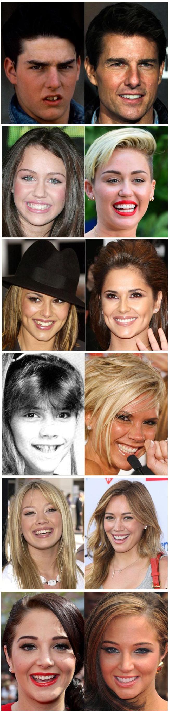 O poder de um sorriso e do dentista - Sorrisos Famosos
